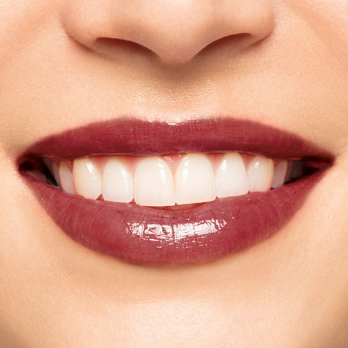 Embellisseur Lèvres Intenses